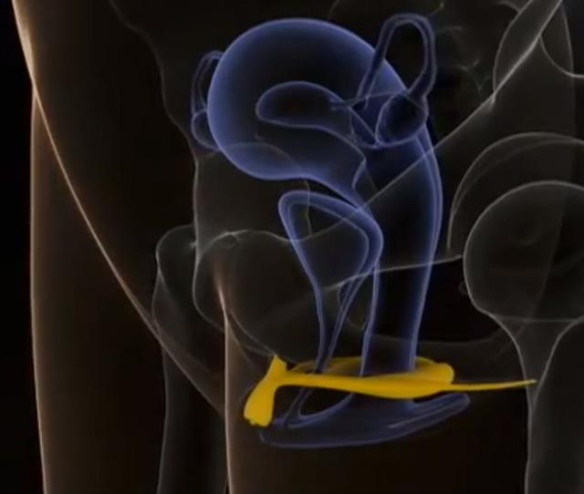 clitoris-sonography