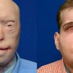 face-transplant_1024