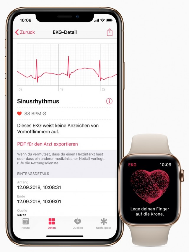 Apple-iPhone-watch-ecg-de-screen-03272019